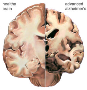 Alzheimer's causes changes in the brain, leading to challenging behaviors.