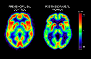 brain-healthy-women